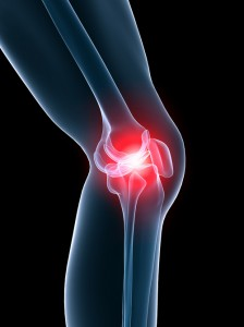 Acupuncture is an effective treatment for pain and physical dysfuntion associated with osteoarthritis of the knee